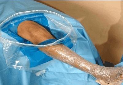 Arthroscopy Drape