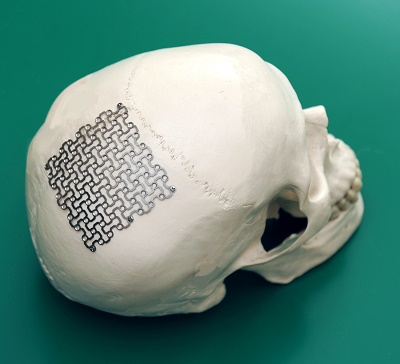Easyscrew Cranial Fixation System