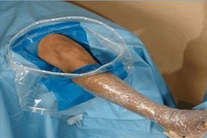 Arthroscopy Drape Eco